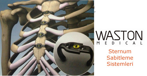 Waston Medical Sternum Sabitleme Sistemleri